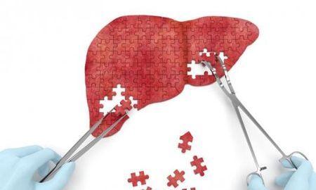 Can Diabetes Cause Liver Damage?