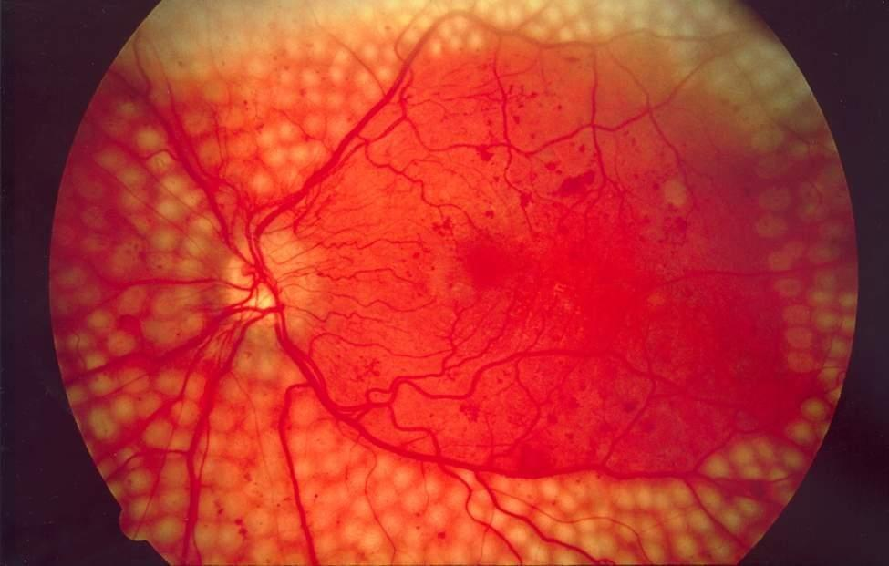 What Symptoms Might Be Present In Someone With Diabetic Retinopathy?