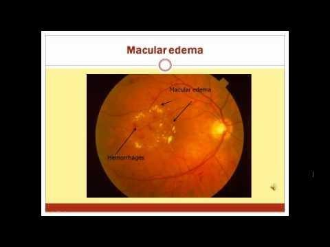 Icd 10 Diabetic Retinopathy Unspecified