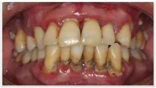 Bacteremia After Chewing In A Patient With Severe Chronic Periodontitis And Diabetes Mellitus Type 2: A Brief Report