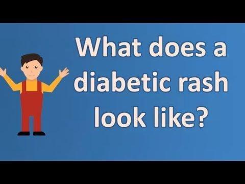 Can You Get Athlete's Foot From Diabetes?