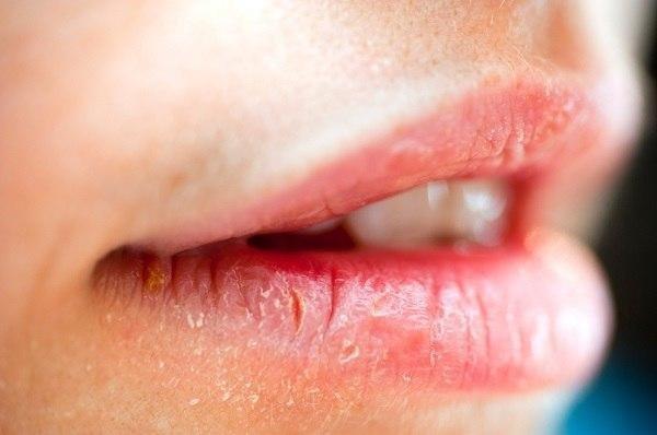 Diabetes Lips