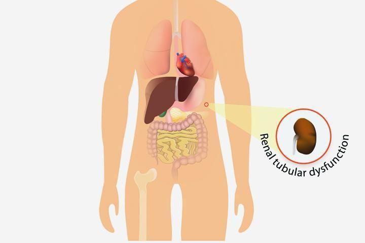Renal Tubular Acidosis Causes