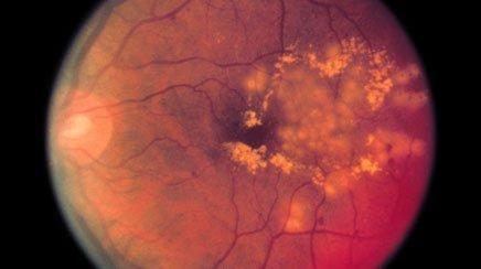 Diabetic Retinopathy Diagnosis