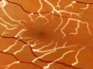Proliferative Diabetic Retinopathy
