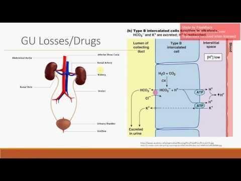 Hyperchloremic Metabolic Acidosis