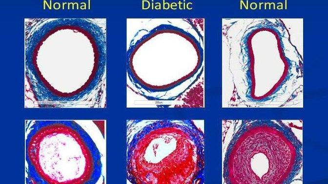 Researchers Implicate Suspect In Heart Disease Linked To Diabetes