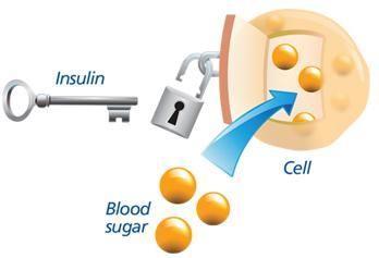 Type 2 Diabetes Basics