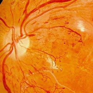 How To Diagnose And Manage Diabetic Retinopathy
