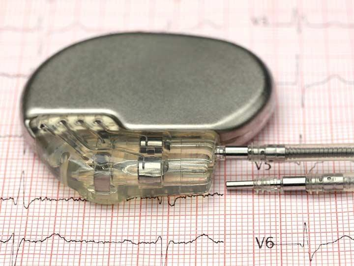 Short Battery Life Of Cardiac Devices: A Scandal?