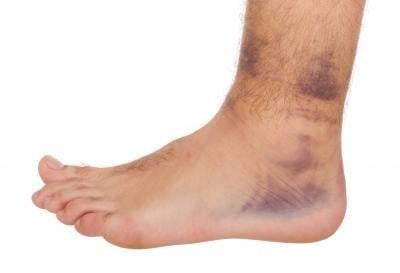 Bruises On The Feet: What You Can Do