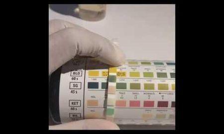 Glucose Test Strips Urine