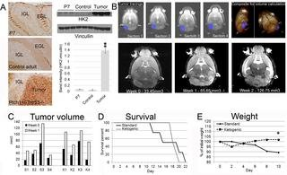 The Ketogenic Diet Does Not Affect Growth Of Hedgehog Pathway Medulloblastoma In Mice