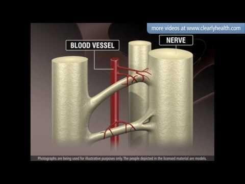 Type 2 Diabetes Damages Blood Vessels