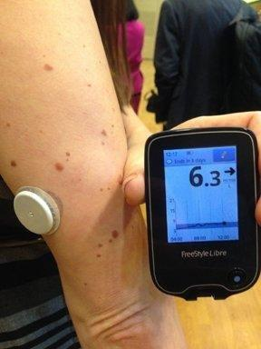 Freestyle Libre Flash Glucose Monitoring System Price In India