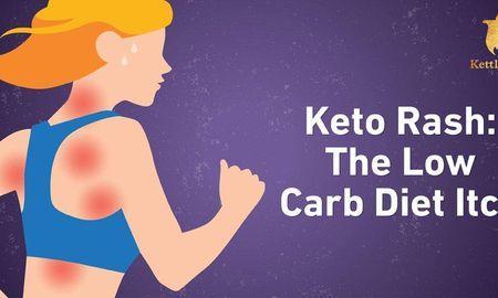 Fasting Ketosis Symptoms