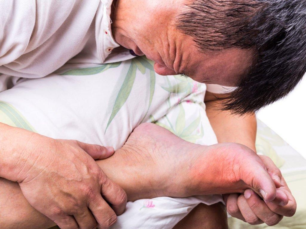Does Gout Cause Diabetes?