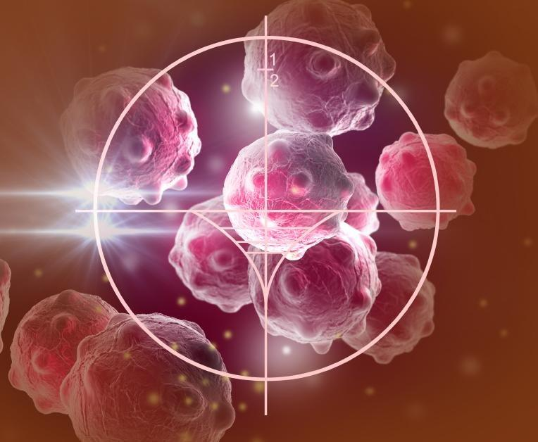 Relationship Between Diabetes And Prostate Cancer