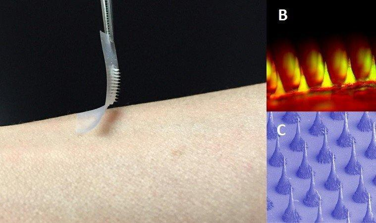Scientists Create A Painless Patch That Can Control Diabetes Without Injections