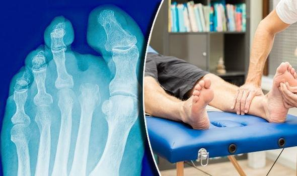 What Causes Diabetics To Lose Their Legs?