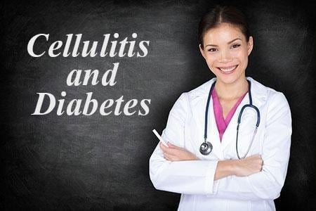 Cellulitis And Diabetes – What Are The Risks?