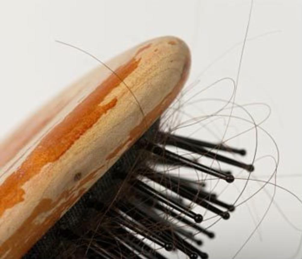 Thinning Hair And Hair Loss: The Top 5 Reasons-medically Speaking