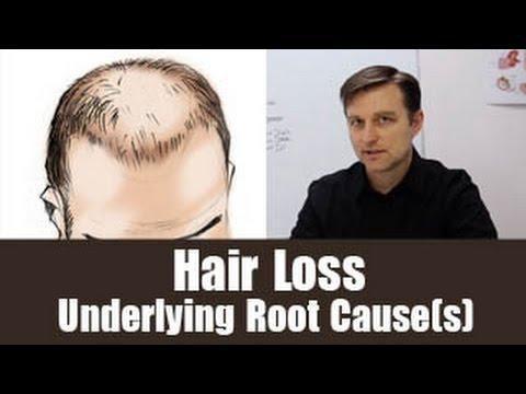 Do Diabetes Cause Hair Loss
