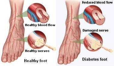 Vinegar For Feet Diabetes