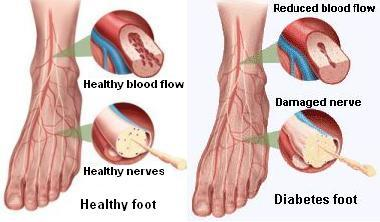 Why Is It Bad For Diabetics To Soak Their Feet?
