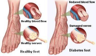 Why Diabetics Should Not Soak Their Feet?