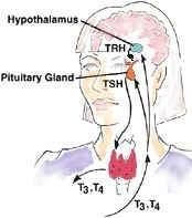 Diabetes And Thyroid Disease A Likely Combination