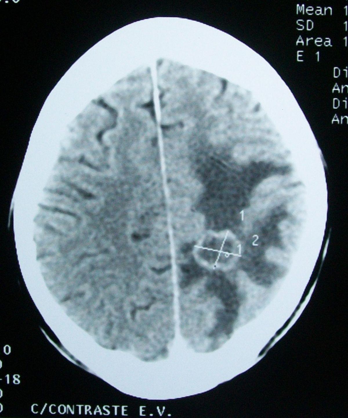Cerebral Edema - Wikipedia