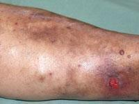 Diabetic Dermopathy Pictures