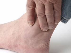 Metformin Side Effects Gout