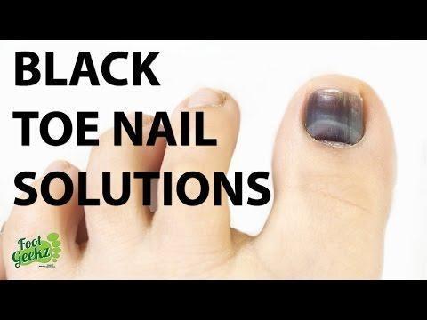 Diabetic Toenails Turning Black
