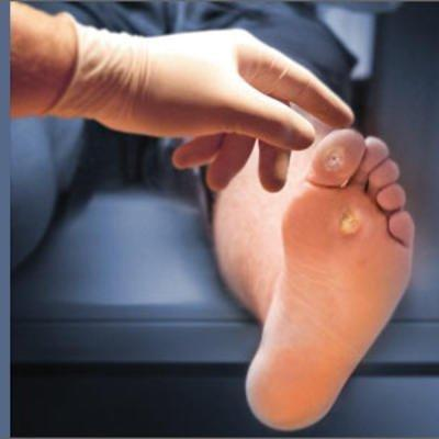How To Do A 3-minute Diabetic Foot Exam