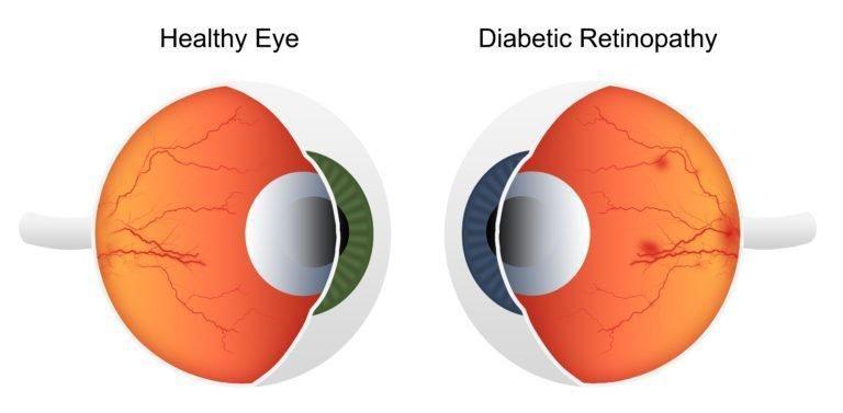Does High Blood Sugar Affect Vision
