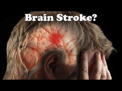 Stroke In Diabetic Patients