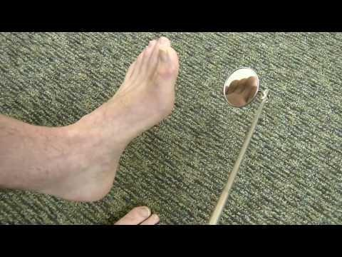 What Happens To Your Feet If You Have Diabetes?