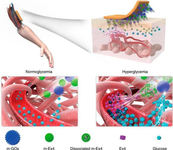 Microneedle-array patches loaded with dual mineralized protein/peptide particles for type 2 diabetes therapy
