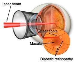 Diabetic Retinopathy In Only One Eye