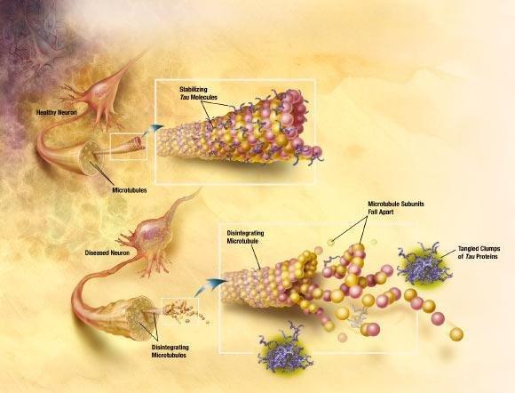 New Diabetes Drug Shows Promise Against Alzheimer's Disease