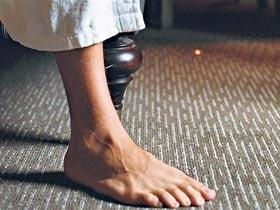 Diabetic Neuropathy And Poor Circulation Problem