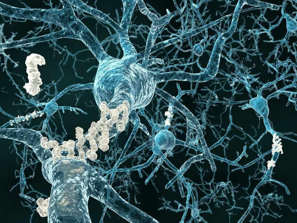Researchers Link Alzheimer's Gene To Type 3 Diabetes