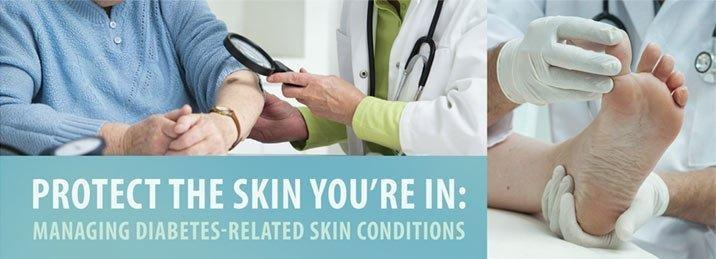 Below Is More Detail On How Diabetes Affects The Skin, Common Conditions And Pointers To Protect The Skin You're In.