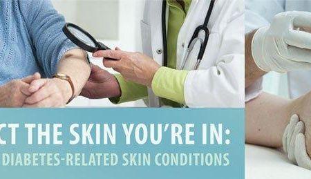 Metformin And Skin Problems