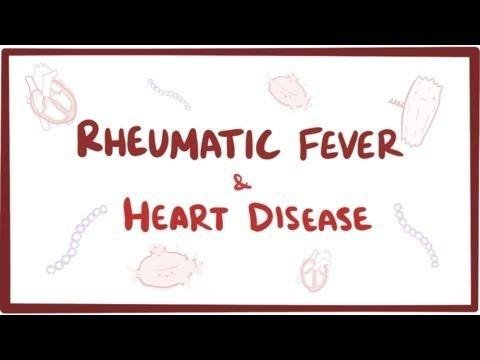 Glucocorticoid-induced Diabetic Ketoacidosis In Acute Rheumatic Fever.