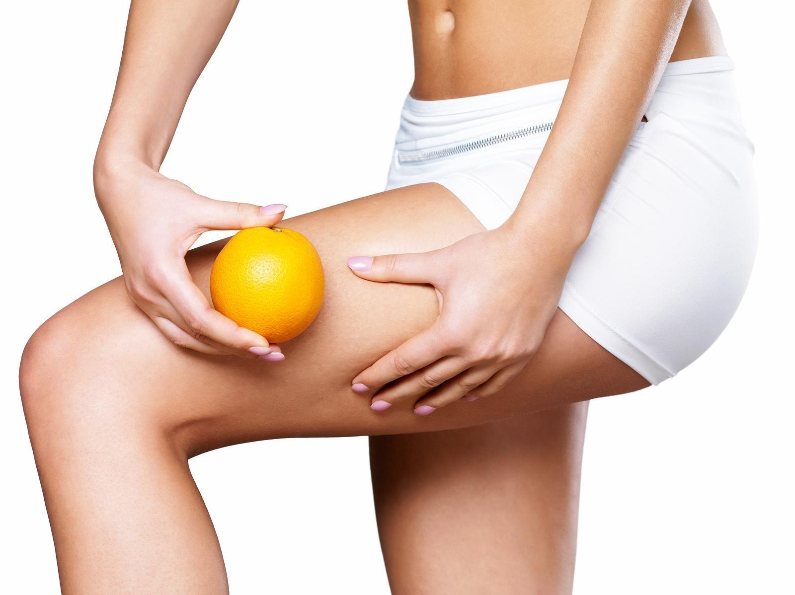 Cellulite Is Curable: Here's 3 Ways To Do So