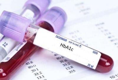 Diabetes Test (HbA1c) Price in India