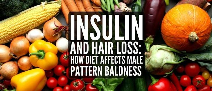 Insulin And Hair Loss: How Diet Causes Androgenetic Alopecia